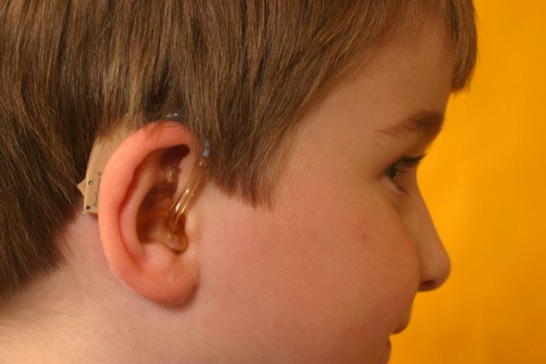 Assurance : L'achat de prothèses auditives  à l'étranger